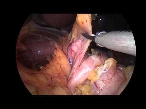 Sleeve gastrectomy : Technical revisions, Istanbul Bariatrics