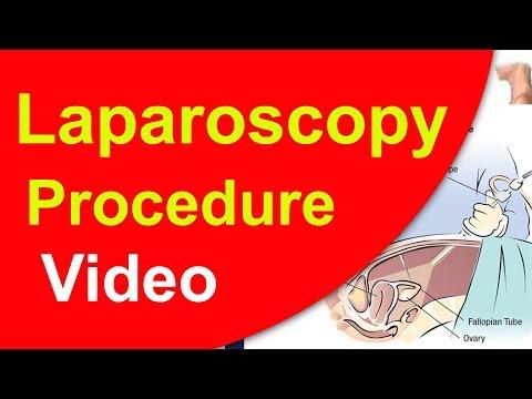 லேப்ராஸ்கோபி-அறுவைசிகிச்சை-முறை|-laparoscopy-for-infertility-in-tamil-|-ivf-iui-icsi-testtube-baby