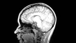 My Brain - MRI Scan Result Images