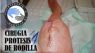 En la de rodilla? pantorrilla cirugía dolor qué después ¿Por de una