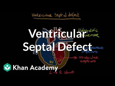 Ventricular septal defect | Circulatory System and Disease | NCLEX-RN | Khan Academy