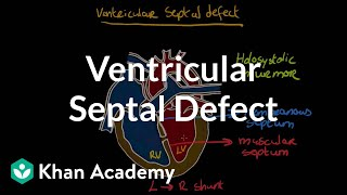 Ventricular septal defect | Circulatory System and Disease | NCLEX-RN | Khan Academy