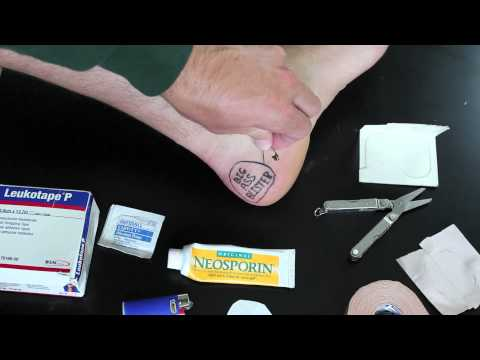How To Clean And Dress Blisters For Hiking