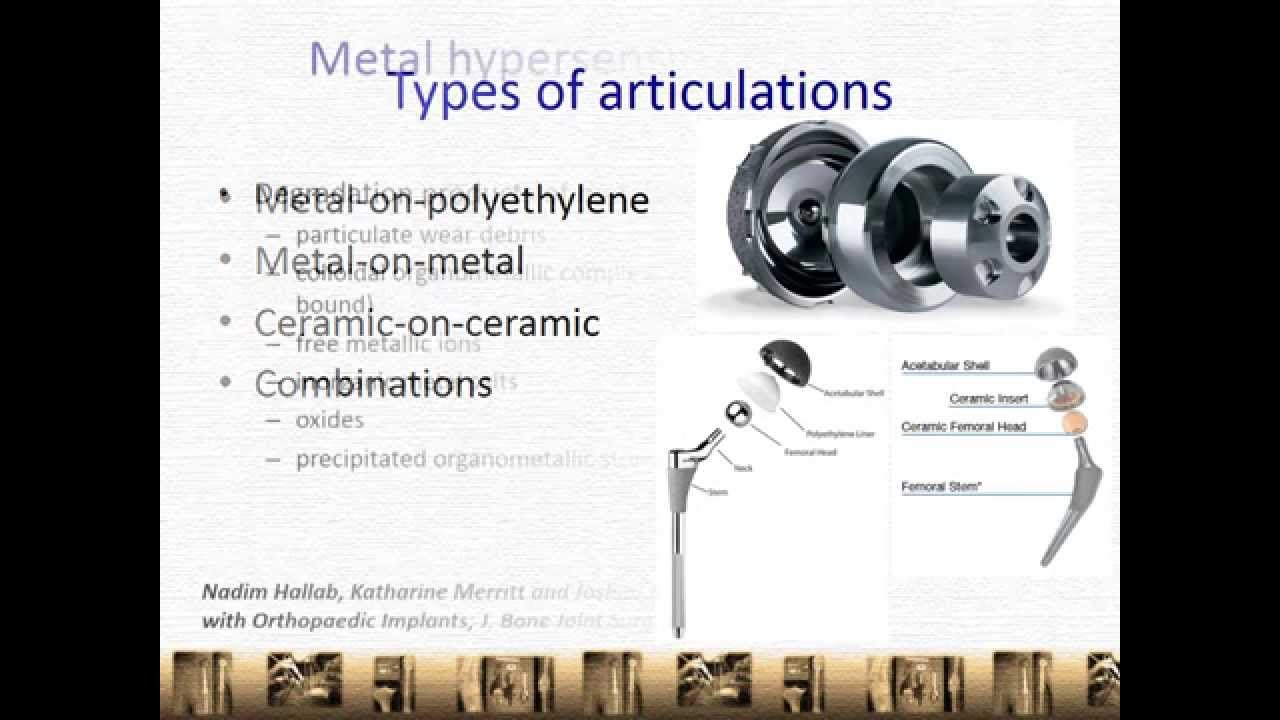 Metal Allergy in Joint Replacement Surgery - Knee / Hip Replacement,  Singapore