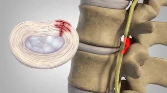 hqdefault - Herniated Disc Low Back Pain