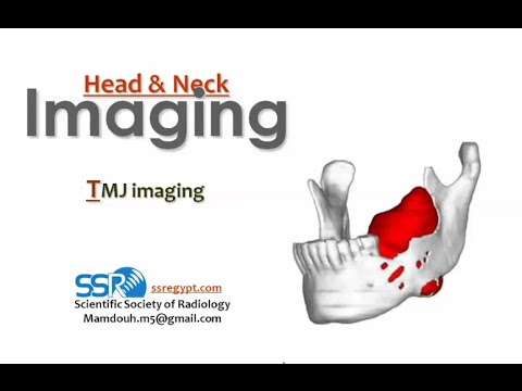 Imaging of TMJ - DRE 16 - Dr Mamdouh Mahfouz