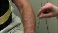 New Treatment For Psoriasis