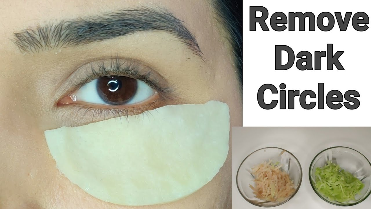 How to Remove DARK CIRCLES under eyes | Home Remedies to ...