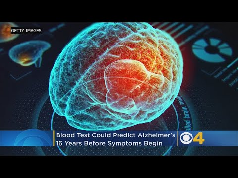 Blood Test Could Detect Alzheimer's Disease Up To 16 Years Before Symptoms Begin, Study Says