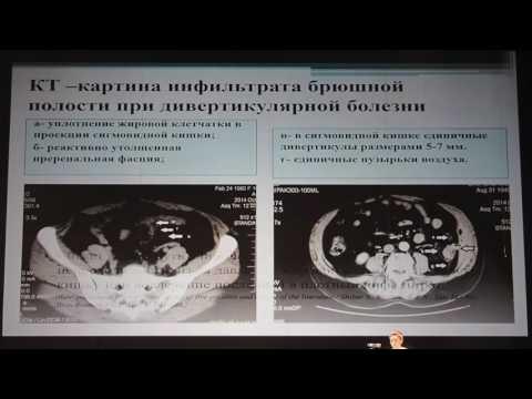 24 Разувайлова АГ   Дифференциальный диагноз и хирургическая тактика при инфильтратах брюшной полост