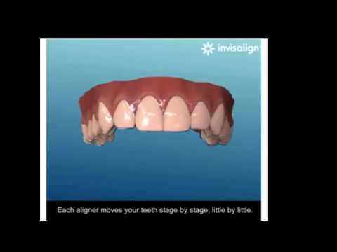 Niềng răng không mắc cài invisalign 3D
