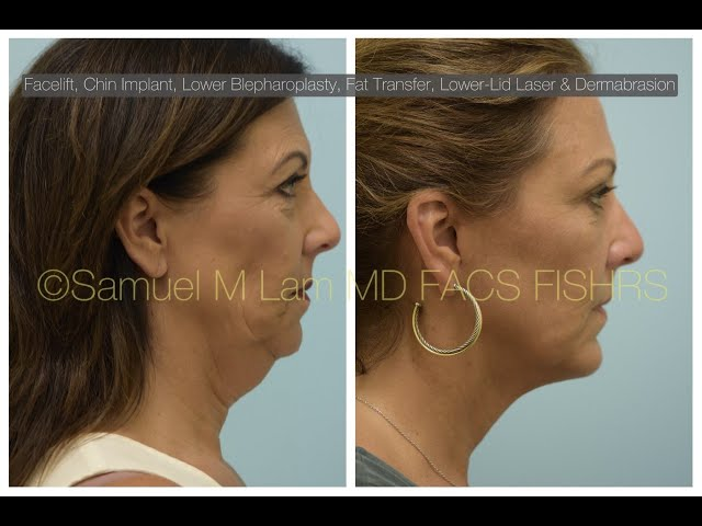 Dallas Facelift, Chin Implant, Lower Eyelid Surgery, Fat Transfer Patient Testimonial & Photos