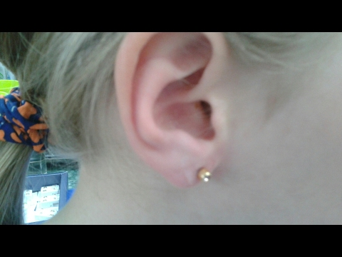 Болят ли уши после прокола пистолетом