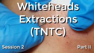 Whiteheads Extraction (TNTC) - Session 2: Part 2 of 3