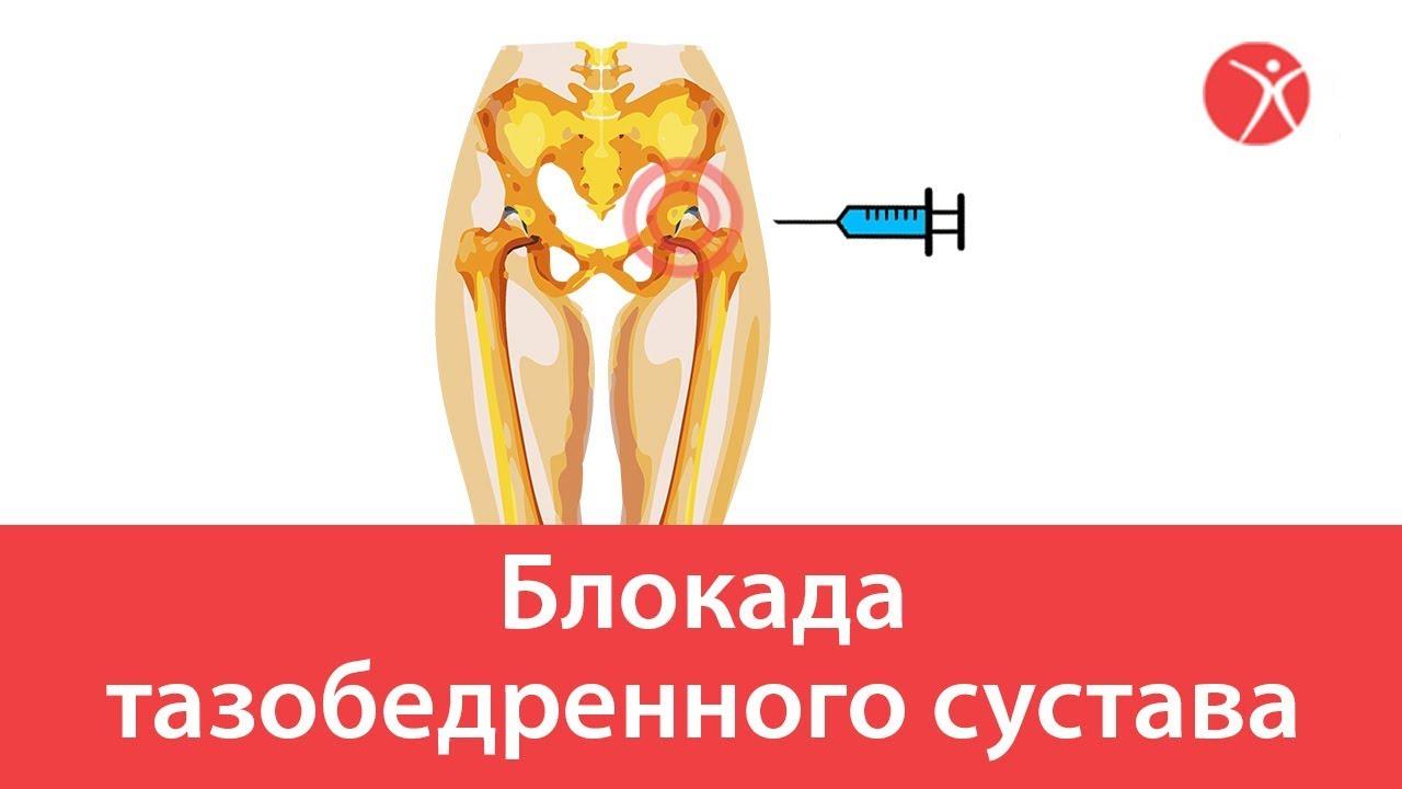 Блокада тазобедренного сустава
