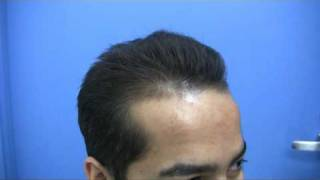 Hair Transplant by Dr Jerry Wong - 3446 Grafts - 1 Session.