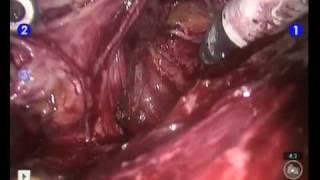 Cancer localisé prostatectomie radicale Robotique Dr Michel Naudin