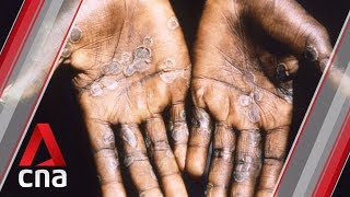 Singapore's first case of monkeypox: What you need to know about the disease