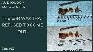 THE EAR WAX THAT REFUSED TO COME OUT - EP 143