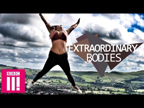 Double Mastectomy Twins   Extraordinary Bodies