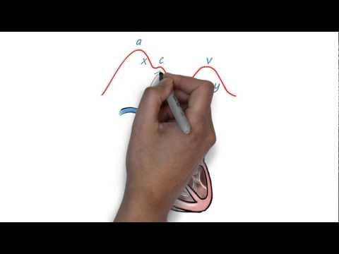 JVP Waveform Explained