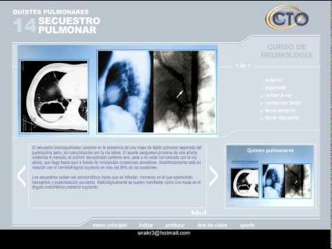 VIDEOCLASES CTO Neumología PARTE 1