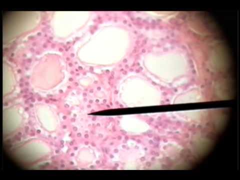 Slide 05 Thyroid Gland Follicles Simple Cuboidal Youtube
