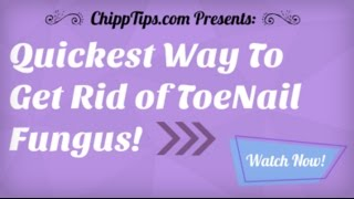 How to Get Rid of Toenail Fungus at Home   Getting Rid of Nail Fungus Fast