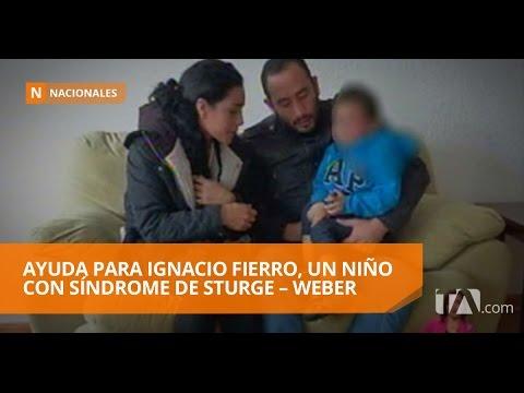 Ayuda para Ignacio fierro, un niño con síndrome de Sturge – Weber