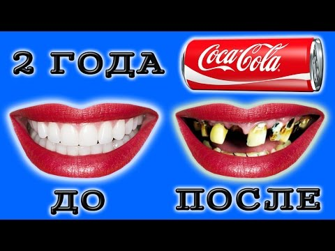 Болят зубы после колы