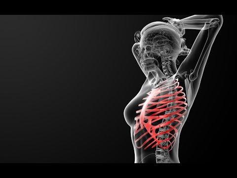 Что делать если болит ребро сломанное четыре месяца назад