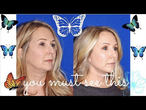 THE BEST FACELIFT/ NECK LIFT I HAVE EVER SEEN