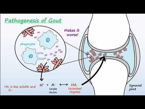 Gout - Mechanisms & Treatment