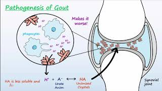 This video describes the physiological mechanisms that bring about gout and also of action for medications used to treat prevent a gou...