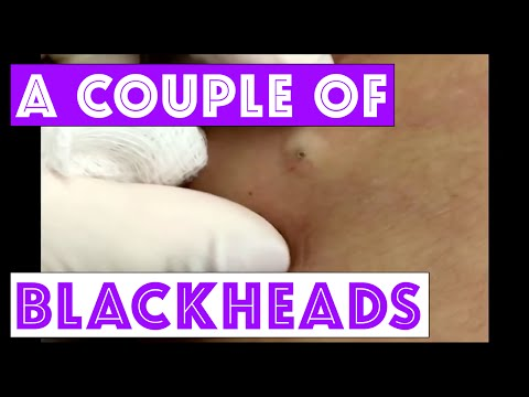 Just a couple of blackheads but one's a beauty!  For medical education- NSFE.