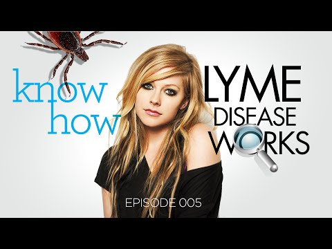 Lyme Disease - Illness of Ignorance (6min Brief on Lyme) [HD]