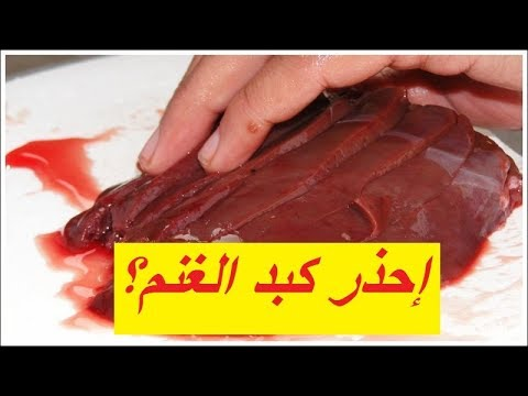 أمراض قد تسببها الكبدة Diseases Caused By Liver Youtube