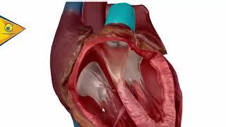 Cardíaca da doença inflamatória válvula