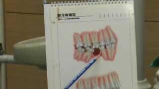 牙齒拔掉後若不作假牙有關係嗎 thumbnail