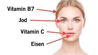 5 Mangel an Vitaminen, die sich in deinem Gesicht zeigen!