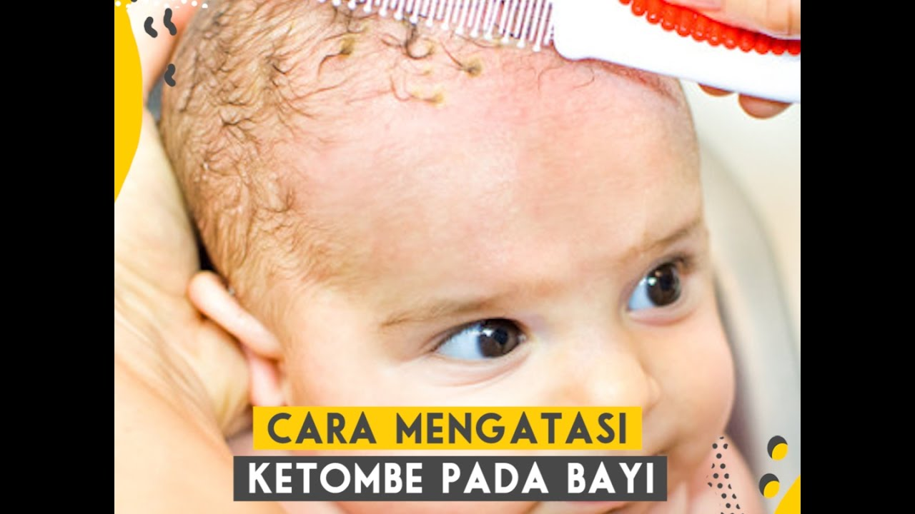 Smart Mama Cara Mengatasi Ketombe Pada Bayi Youtube