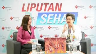 Mengenal lebih jauh tentang Atrofi kulit bersama dr. Yuliana Teguh, Sp.KK