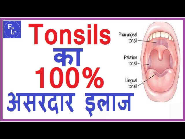 ??? ??? ??????? ?? 100% ?????? ????? ???? / tonsils ka ramban ilaj  /  home remedy for tonsils