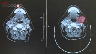 nouveau dans les traitements du mélanome