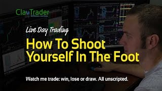 Live Day Trading - How to Shoot Yourself in the Foot