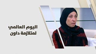 عواطف محمود ابو الرب - اليوم العالمي لمتلازمة داون