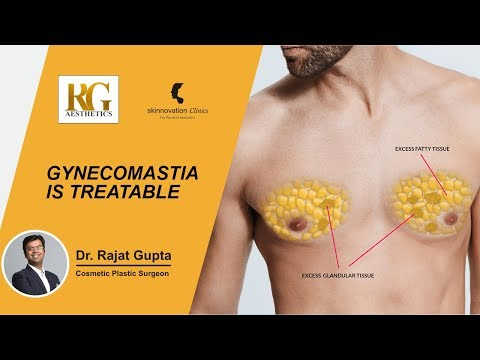 Gynecomastia Is Treatable | Get Rid Of The Moobs And Get A Masculine Chest