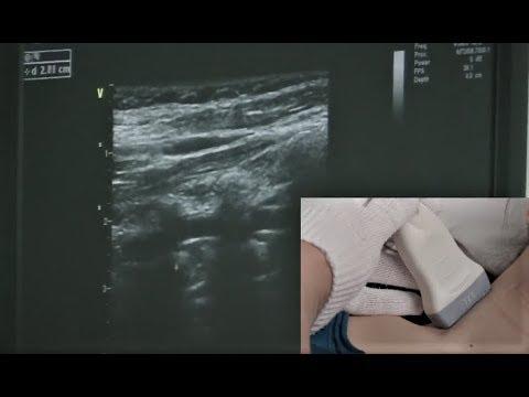 Как делают узи сосудов головы и шеи показать на видео