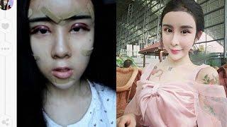 Niña de 15 años se sometió a cirugías plásticas para recuperar a su ex novio