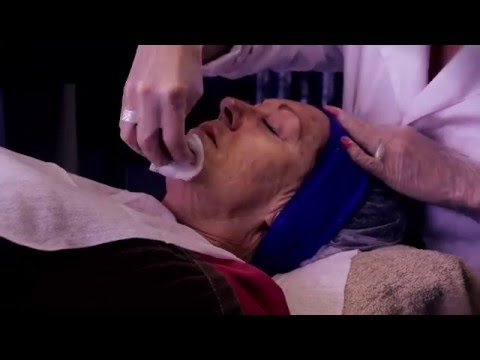 Skin needling (CIT) with Synergie Cliniroller (HD) - Synergie Treatments